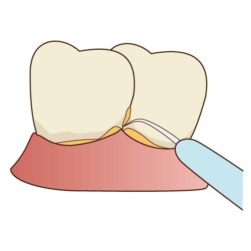 スケーリング|中目黒の歯科 (医)デントゾーン 近藤歯科 ホワイトニング・インプラント・審美歯科