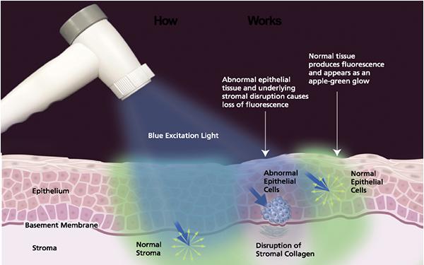 VELscopeを使用した口腔がん検査|中目黒の歯科 (医)デントゾーン 近藤歯科 ホワイトニング・インプラント・審美歯科