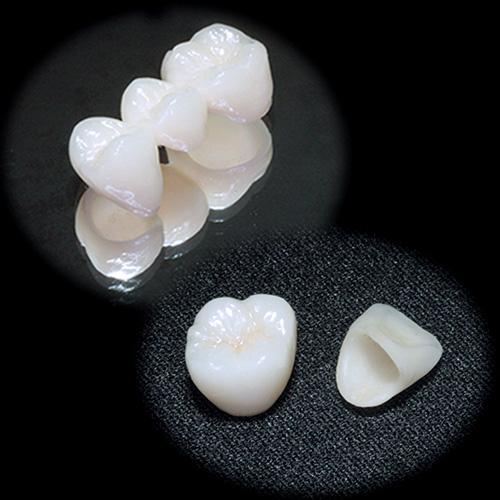 審美歯科治療 e.max オールセラミック クラウン ブリッジ|中目黒の歯科 (医)デントゾーン 近藤歯科 ホワイトニング・インプラント・審美歯科