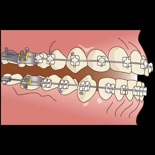 歯列矯正・矯正治療|中目黒の歯科 (医)デントゾーン 近藤歯科 ホワイトニング・インプラント・審美歯科