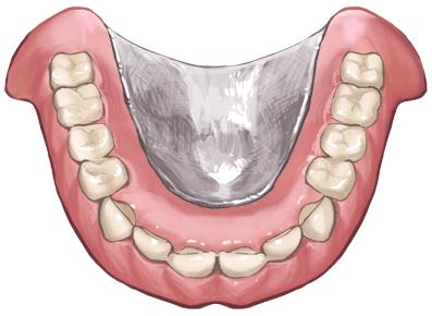 義歯(入れ歯)の製作・調整