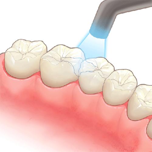 審美歯科治療 ダイレクトボンディング コンポジットレジン