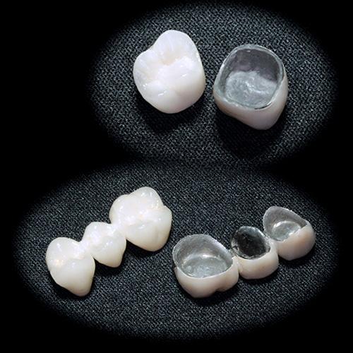 審美歯科治療 メタルボンド クラウン ブリッジ