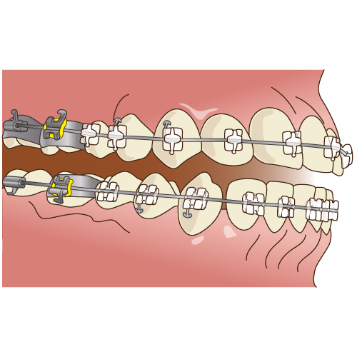 歯列矯正 矯正治療