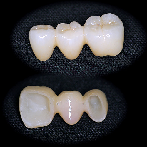 審美歯科治療 ジルコニア ブリッジ