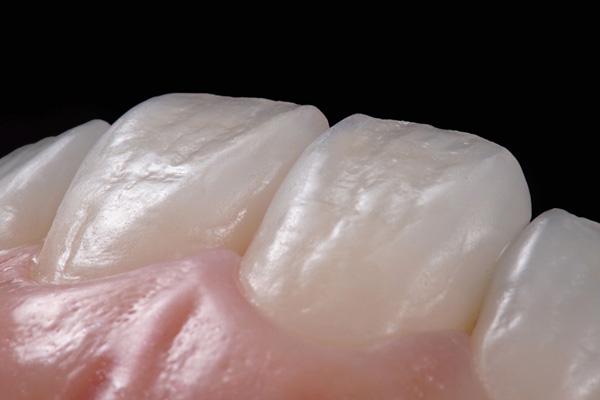 メタルフリー治療 審美歯科