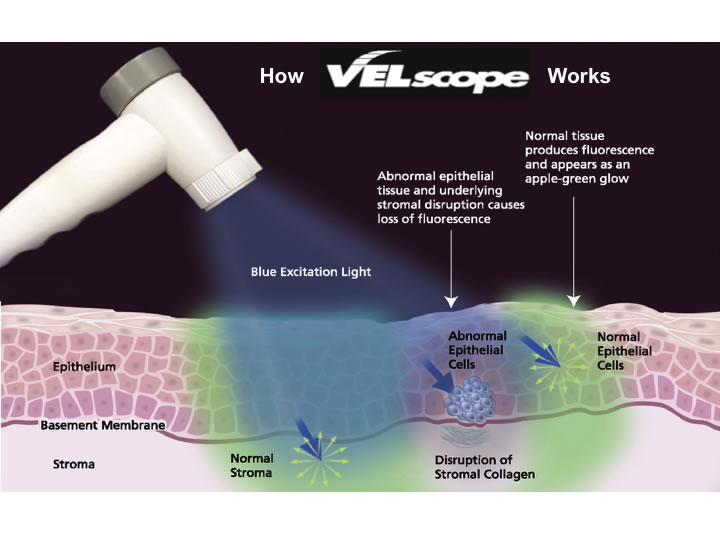 VELscopeを使用した口腔がん検査