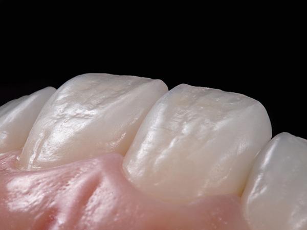 中目黒(医)デントゾーン近藤歯科 審美歯科 メタルフリー治療